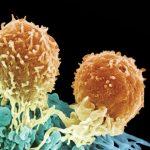 Foto: Este descoperit anticorpul capabil să distrugă cancerul! Nu are efecte secundare