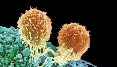 Este descoperit anticorpul capabil să distrugă cancerul! Nu are efecte secundare