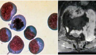 Revoluţionar! Cancerul poate fi tratat prin împrumut de celule imune de la un donator sănătos