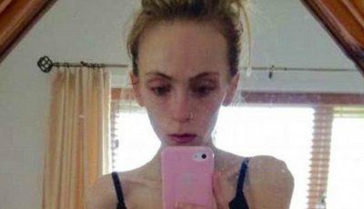 O mamă disperată! Nu știe cum să-și salveze fiica anorexică
