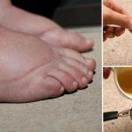 Foto: Remediu natural pentru picioare umflate