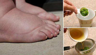 Remediu natural pentru picioare umflate