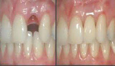 Metoda care permite să îţi creşti propriii dinţi în doar nouă săptămâni!