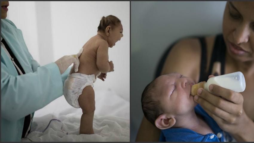 Foto: Peste 1.580 de copii născuţi cu microcefalie, posibil asociată virusului Zica, în Brazilia!