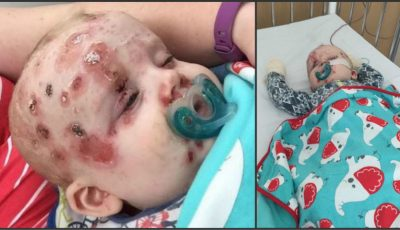 A refuzat să-și vaccineze copilul contra varicelei şi iată ce i s-a întâmplat