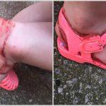 Foto: O fetiță s-a ales cu picioarele pline de sânge, după ce a încălţat sandale din cauciuc
