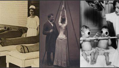 Istoria medicinei în imagini! Fotografii înfiorătoare, dar şi fascinante