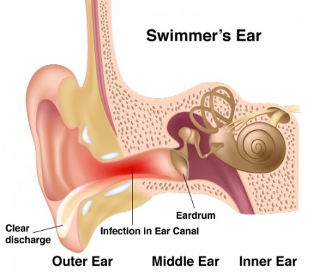Swimmers-ear-448x389