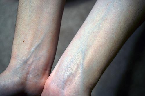 cum se previne venele verzi pe picioare