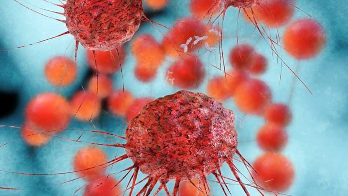 cancer-dialysis-2