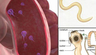 Paraziţi intestinali periculoşi, care îţi invadează corpul fără a prezenta simptome