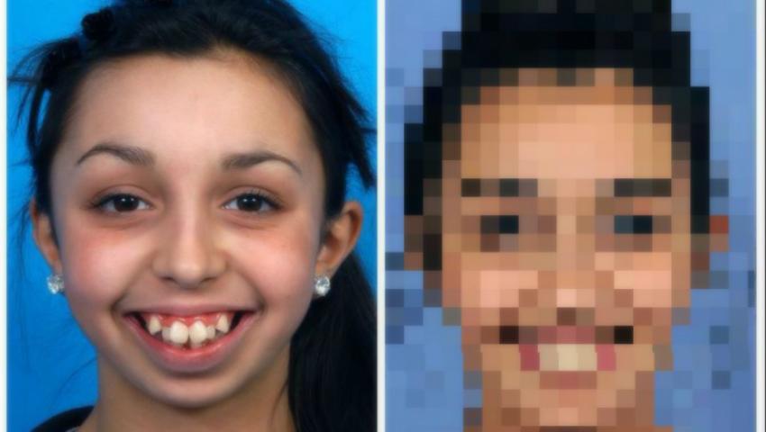 Foto: Transformarea incredibilă a acestei tinere, după ce și-a operat chipul. E de nerecunoscut!