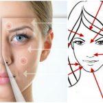 Foto: Ce dezvăluie poziţionarea acneei despre starea de sănătate interioară a organismului