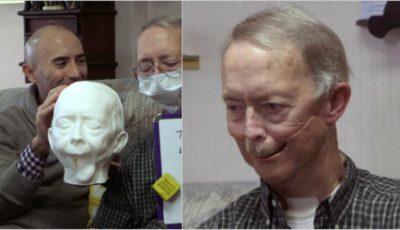 Un pacient a primit o proteză de mandibulă făcută la imprimanta 3D, după ce faţa i-a fost desfigurată de cancer!
