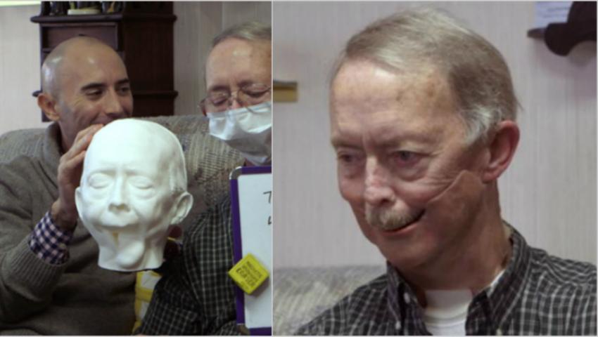 Foto: Un pacient a primit o proteză de mandibulă făcută la imprimanta 3D, după ce faţa i-a fost desfigurată de cancer!