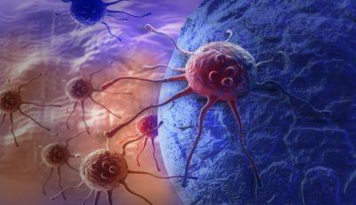 Obezitatea cauzează 13 tipuri de cancer!
