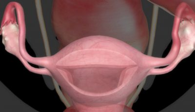 Boli serioase pe care le poate anunţa menstruaţia abundentă!