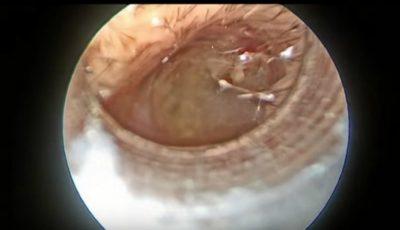 Caz extrem! Un bărbat a adunat atât de multă ceară în urechi, încât doctorul cu greu a putut să o scoată! Video