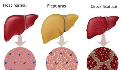 Descoperire şocantă. Alimentul care îţi distruge ficatul mai tare decât alcoolul!