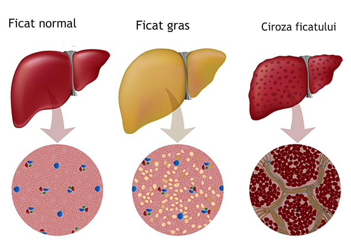 Foto: Descoperire şocantă. Alimentul care îţi distruge ficatul mai tare decât alcoolul!