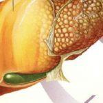 Foto: Fructe care îngrașă și îți pot îmbolnăvi ficatul
