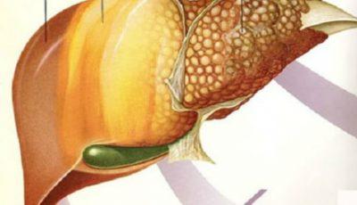 Fructe care îngrașă și îți pot îmbolnăvi ficatul