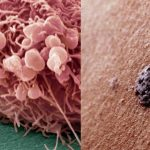 Foto: Descoperire de ultimă oră! Cel mai agresiv cancer de piele poate fi blocat