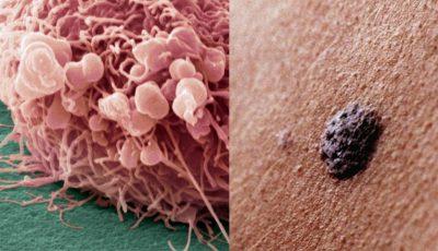Descoperire de ultimă oră! Cel mai agresiv cancer de piele poate fi blocat