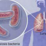 Foto: Un test nou pentru depistarea tuberculozei în instituţiile medicale