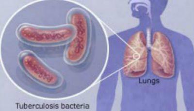 Un test nou pentru depistarea tuberculozei în instituţiile medicale
