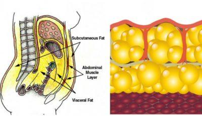 Toxinele acumulate în straturile de grăsime afectează sănătatea. Cum le poţi elimina?