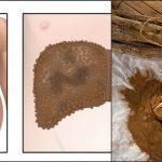 Foto: Ceaiul care a vindecat doi bolnavi de ciroză în fază terminală și hepatită!