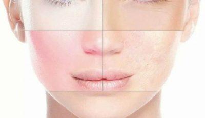 Ce boli trădează aspectul feţei, potrivit medicinei tradiţionale chineze!