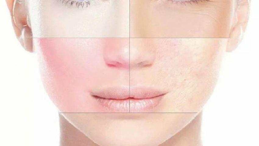 Foto: Ce boli trădează aspectul feţei, potrivit medicinei tradiţionale chineze!