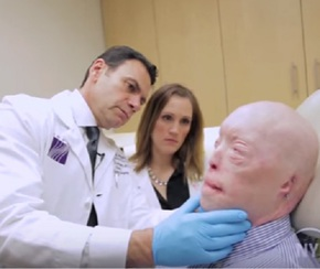 transplant-fata