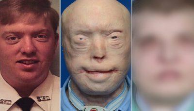 Cum arată acum bărbatul care a suportat primul transplant de faţă complet! Video