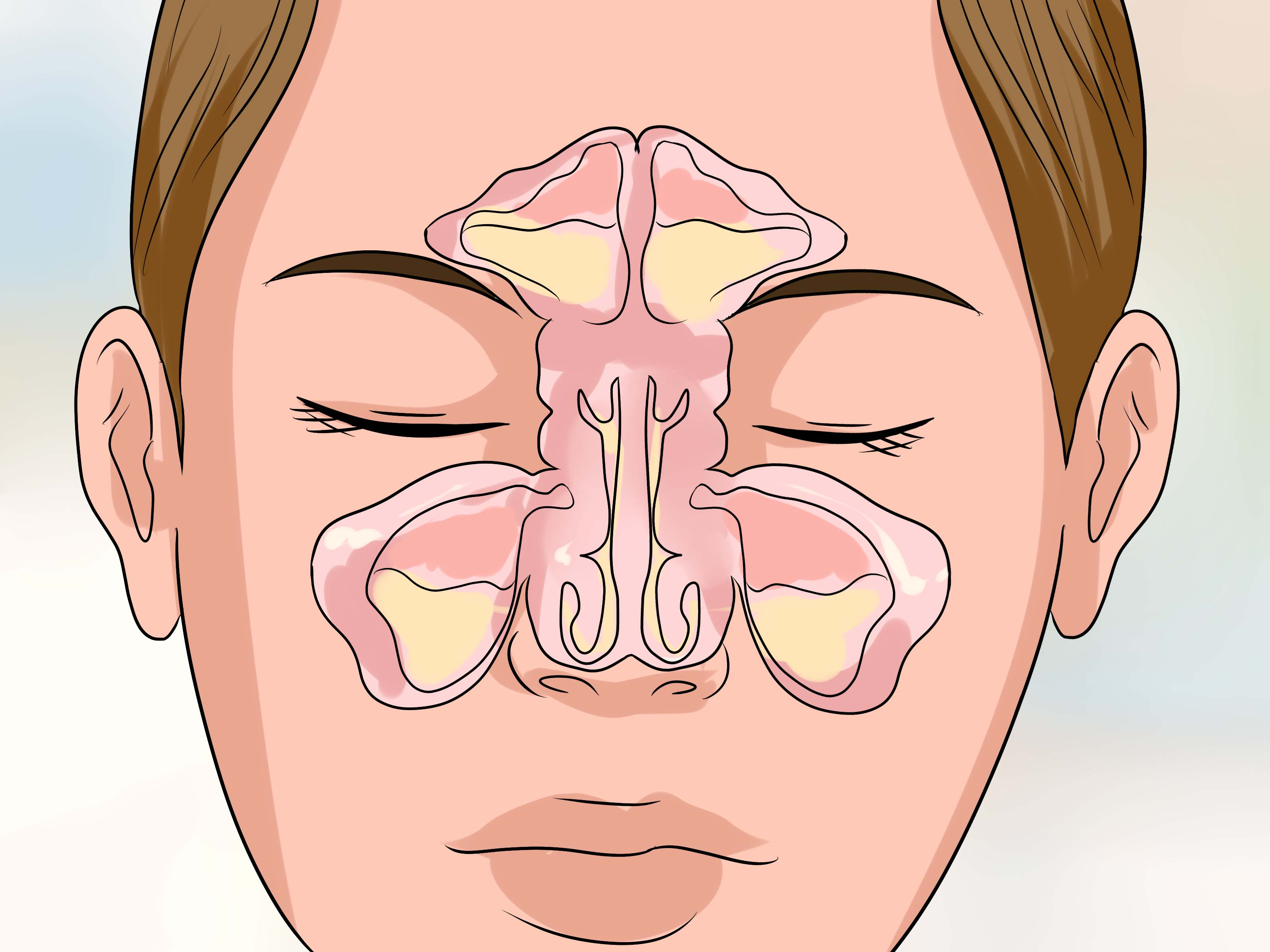 get-rid-of-a-stuffy-nose-quickly-step-20