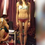 Foto: Din cauza unei diete drastice a ajuns anorexică! Ce s-a întâmplat apoi cu tânăra