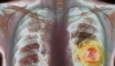 Ministerul Sănătăţii îşi propune să reducă incidenţa cancerului în Moldova. Ce măsuri vor fi implimentate?