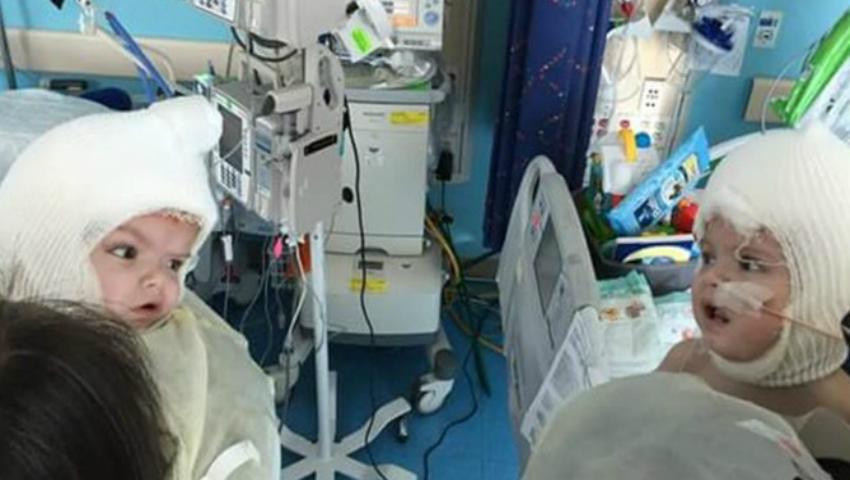 Foto: Caz inedit în SUA! Doi siamezi lipiţi în zona capului au fost separaţi cu succes după o intervenţie de 27 de ore