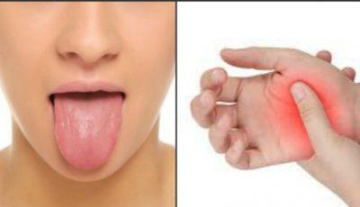 Semne care îţi arată că suferi de carența vitaminei B12 în organism