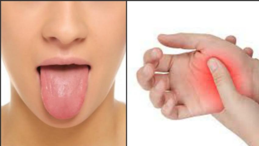 Foto: Semne care îţi arată că suferi de carența vitaminei B12 în organism