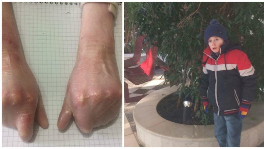 Danu are nevoie de 10.000 euro pentru a suporta o intervenție de separare a degetelor! Împreună îl putem ajuta