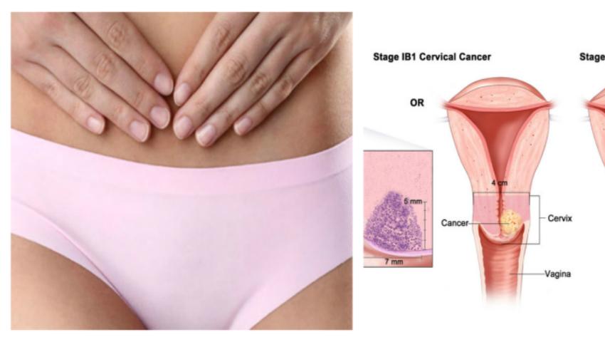 Foto: Cancerul de col uterin: 10 lucruri pe care nu le știai despre această maladie!