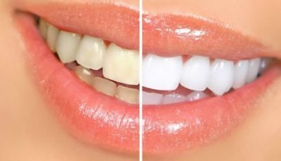 Truc de albire a dinților. E simplu, iar rezultatul e uimitor!