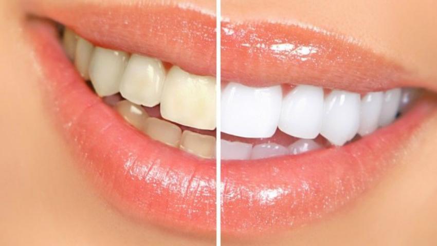 Foto: Truc de albire a dinților. E simplu, iar rezultatul e uimitor!