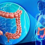 Foto: Cancerul la colon, pe primul loc în Moldova! Măsuri sigure de prevenire