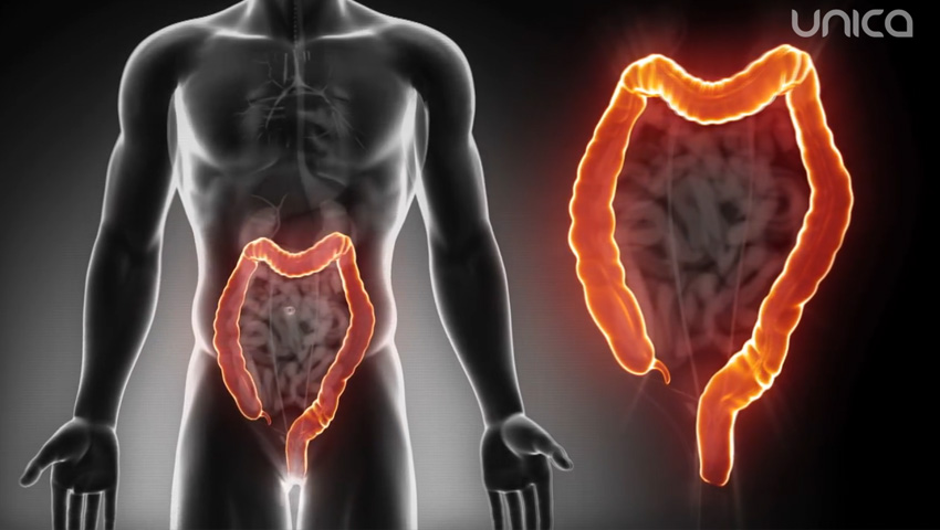 Cancerul la colon, pe primul loc în Moldova! Măsuri sigure de prevenire