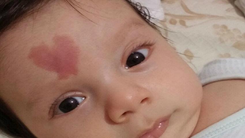"""Foto: Bebelușul al cărui semn din naștere a uluit internauții: ,,Mami, eu chiar te iubesc!"""""""