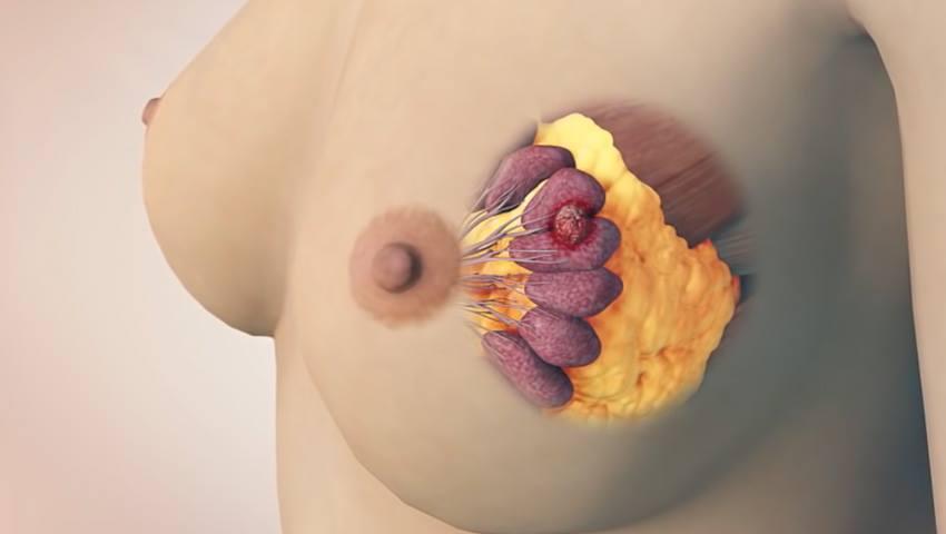 Foto: VIDEO Află totul despre mamografie, metoda eficientă care poate detecta  85 % din tumorile sânului